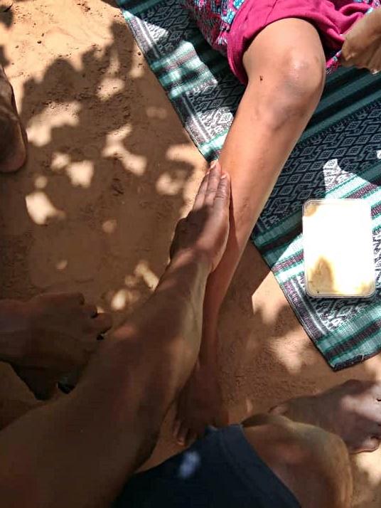 un guérisseur soigne une patiente grâce à un baume de karité mélangé à des plantes